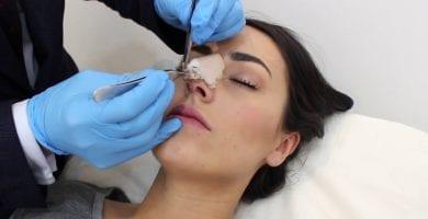 ferula nasal